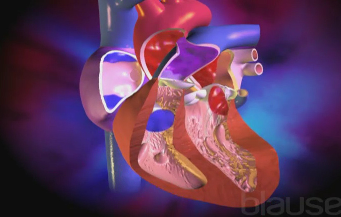 Insuffisance mitrale - Service de cardiologie - CHUV