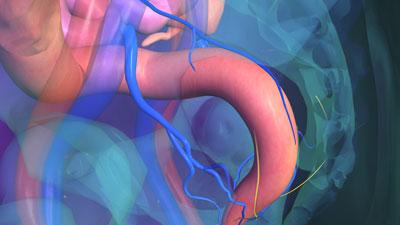ligature des hémorroïdes douleur