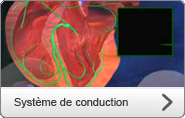 Systhème de conduction