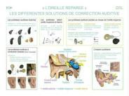orl_otologie_corrections_auditives