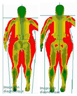 densitométrie osseuse résultat